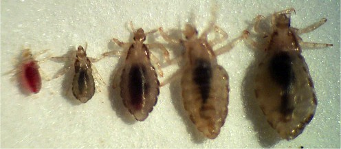 Head lice (from newly hatched to fully grown)