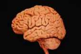 what my brain is supposed to look like.