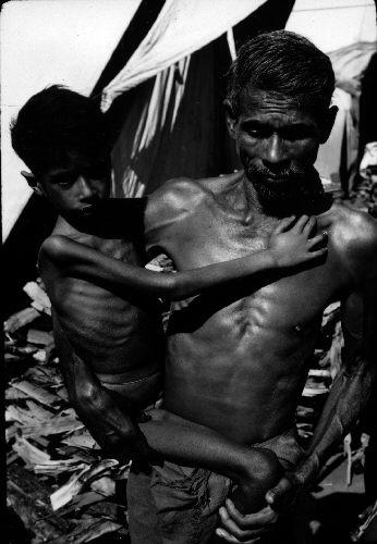 http://en.wikipedia.org/wiki/File:Starved_child.jpg