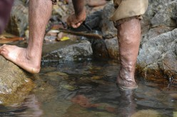 Medical Diagnosis Practice Questions: Leg Pain