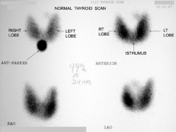 Normal Thyroid Scan Results