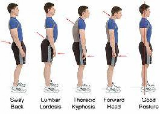Compare the postures to the left to the CORRECT posture on the right.