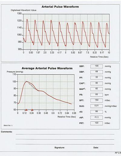 Arterial Pulse Waveform analysis