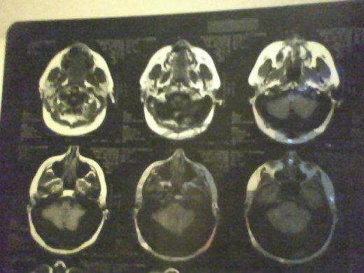 The Darkened area in the posterior portion of skull,bottom of head is the cyst behind my cerebrum.