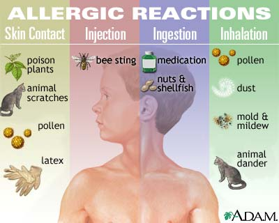 Treatment for Allergy reaction
