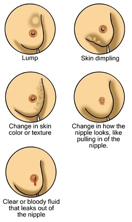 Self exam the breast