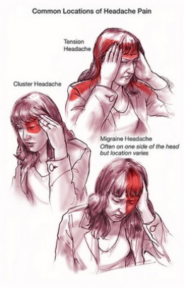 Treatment for migraine and Headache pain
