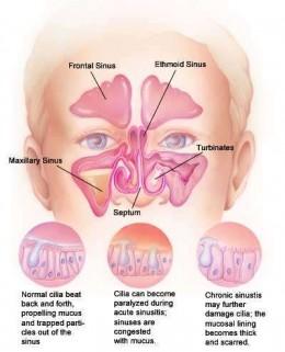 http://www.genericlook.com/diseases/Nasal-Congestion/
