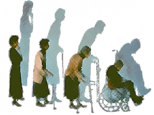 Osteoporosis Treatment for Women