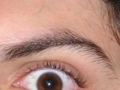 Diary of My PRK Corrective Eye Surgery