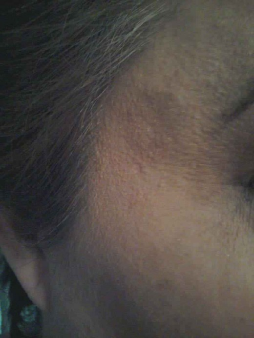 Liver spot located at right temple without any makeup