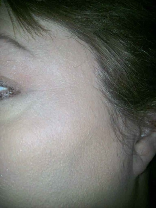 Left cheekbone after Sheer Cover concealer and Mineral Foundation have been applied in my own custom blended shades!