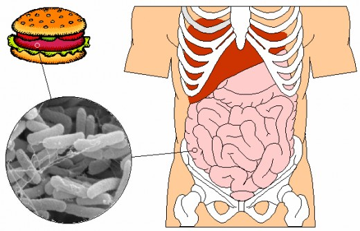 E Coli Food Poisoning often happens when people eat hamburger that is not thoroughly cooked. E Coli can kill young children and people with reduced immunity. So be sure all hamburger is cooked well done.