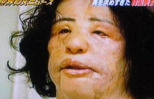Facial application oxygen mask