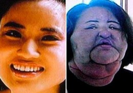 Horrors Of Cosmetic Surgery
