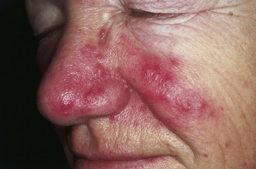 Severe Case of Rosacea;  photo by: M. Sand, D. Sand, C. Thrandorf