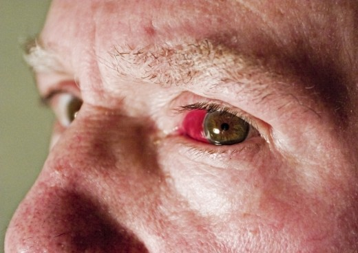 Redness is one of the symptoms of pink eye.