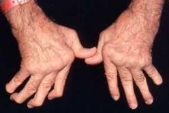 Degenerative joint disorder- rheumatoid arthritis