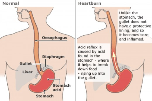 In this diagram you can see what causes acid reflux and heart burn.