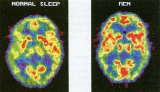 Normal Sleep Brain, REM Sleep Brain