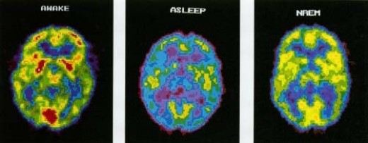 The Brain Awake, Asleep, and during Non-Rapid Eye Movement Sleep.