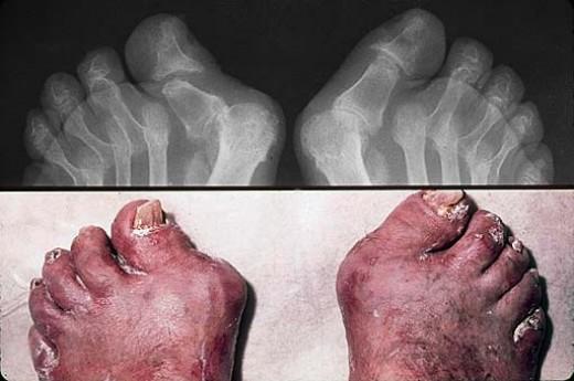 This patient has psoriasis and psoriatic arthritis symptoms