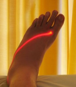 Laser Therapy on the foot. Physical Therapist is the most advertised job in USA in September 2011.