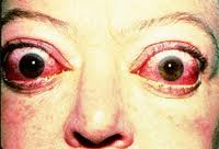 Woman with bulging eyes due to Grave's disease
