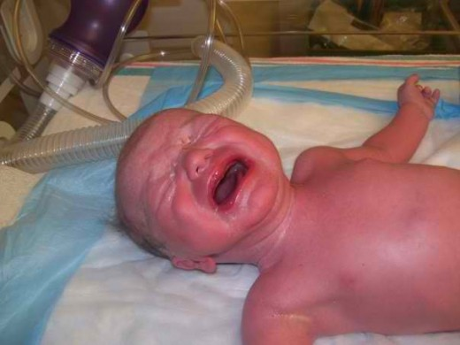 My son when he was born....