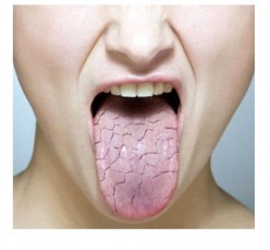 Chronic Dry Mouth Is A Serious Oral Health Issue