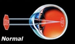 An image enters the eye, passing through the cornea (where it is focused), then the lens (where it is fine-focused), before reaching the Retina on the back of the eye (albeit as a reversed image, which the brain naturally flips).