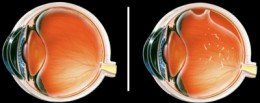 Left: A healthy eye. Right: An eye with retinal detachment. Click for larger image. (©SFG)