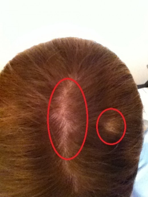 This is an actual picture that I took of my head about a couple of days ago. As you see there is a wider area that you see of my scalp and, I think that second spot may actually be another small bald spot or it may be from the lighting.