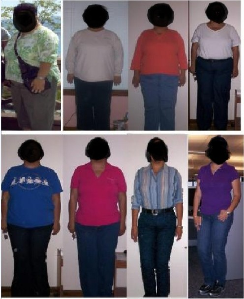 After bariatric surgery