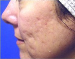 Laser Acne Treatment: When Should You Consider It?