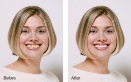teeth whitening, before and after