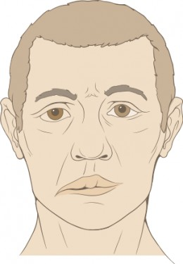 With Bell's Palsy the affected side becomes droopy and has no muscle movement