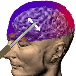 Icepick frontal lobotomy, a technique developed by Walter Freeman