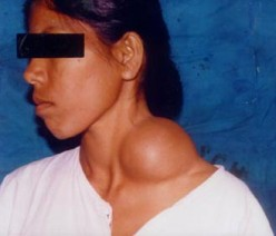 A lump/ mass on the neck - Branchial cyst