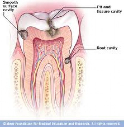 Cavity is a hollow within a solid body; It is a decay part of tooth.