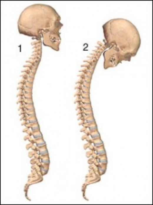 1 is normal while 2  suffers from ankylosing spondylitis