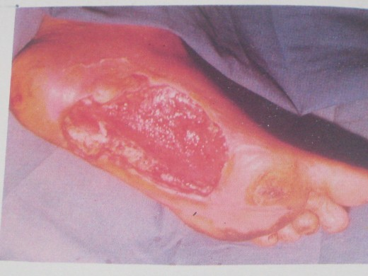 Ulcerated Diabetic Foot