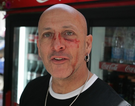 "Richard Fairbrass of Right Said Fred (""I'm Too Sexy..."") beaten up at Moscow Pride 2007"