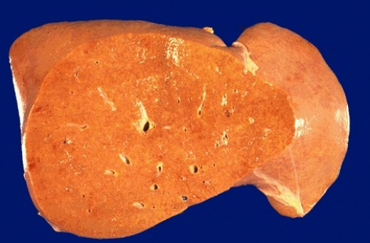Fatty liver is grossly enlarged, yellow, and greasy and firm with a smooth and glistening capsule.