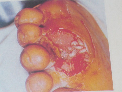 Diabetic Foot showing Ulcers with Maggots