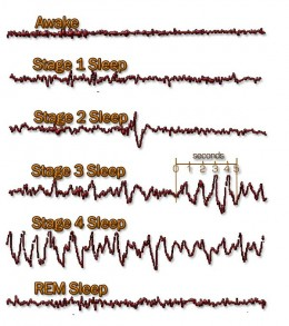 An EEG simulation of the stages of Brain Waves during sleep
