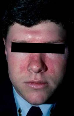 Medical symptom checker - Butterfly rash on face - Seborrheic dermatitis treatment