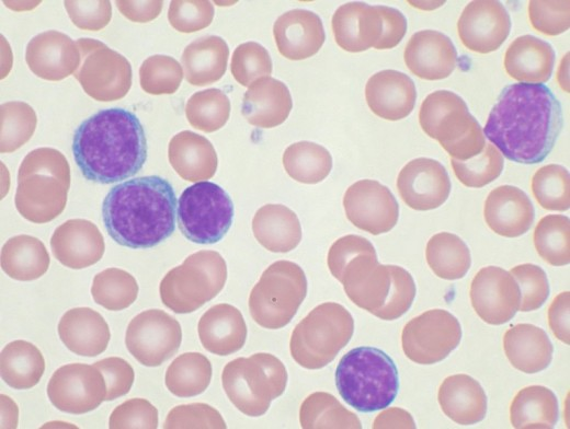 The darkly stained lymphocytes are chronic lymphocytic leukemia cells.