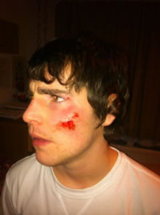 Sam Main, 19, with facial grazing caused by  making contact with the concrete on the platform when he was thrown off the train.