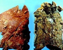 Non-Smoker's Lung Left, Smoker's Lung Right.